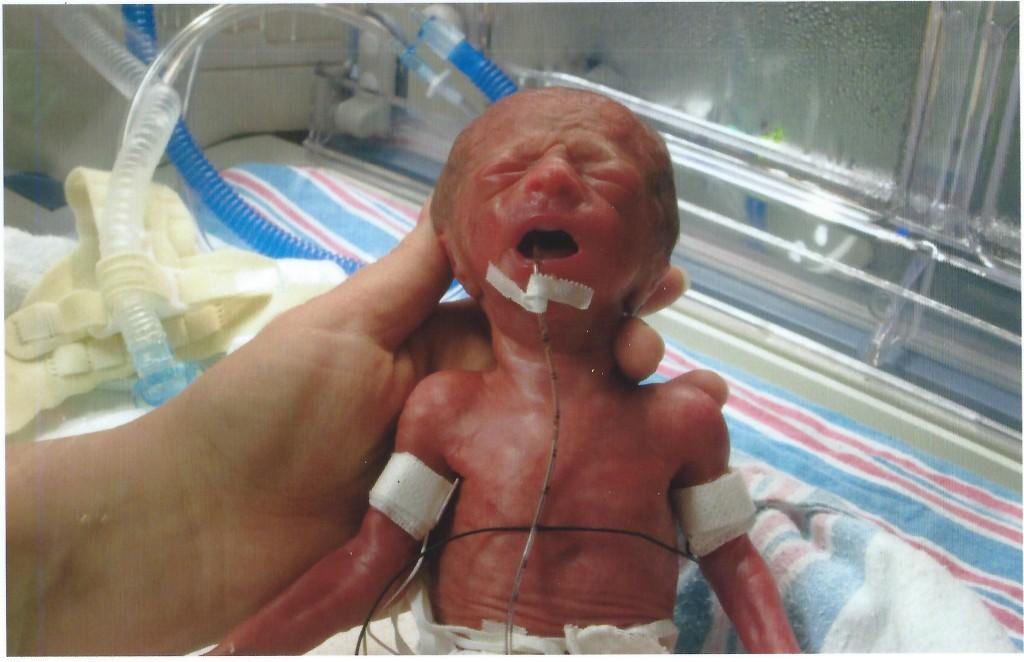 25 week old preemie micropreemie