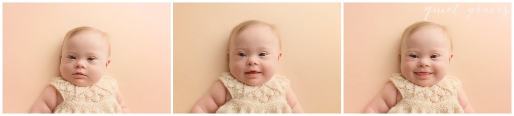 Baby Girl with Down Syndrome Pictures