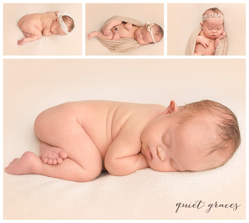 Newborn with Down Syndrome