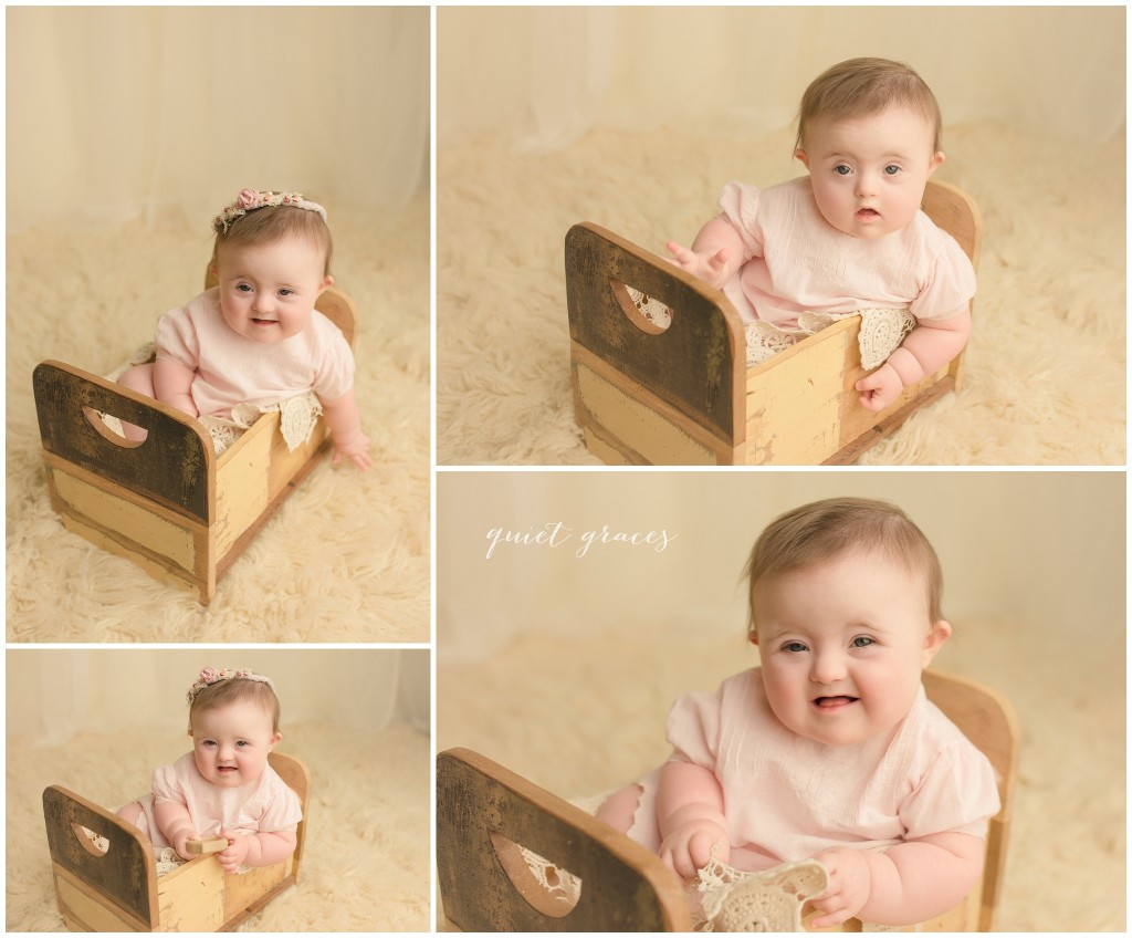 Babies with Down Syndrome are people too