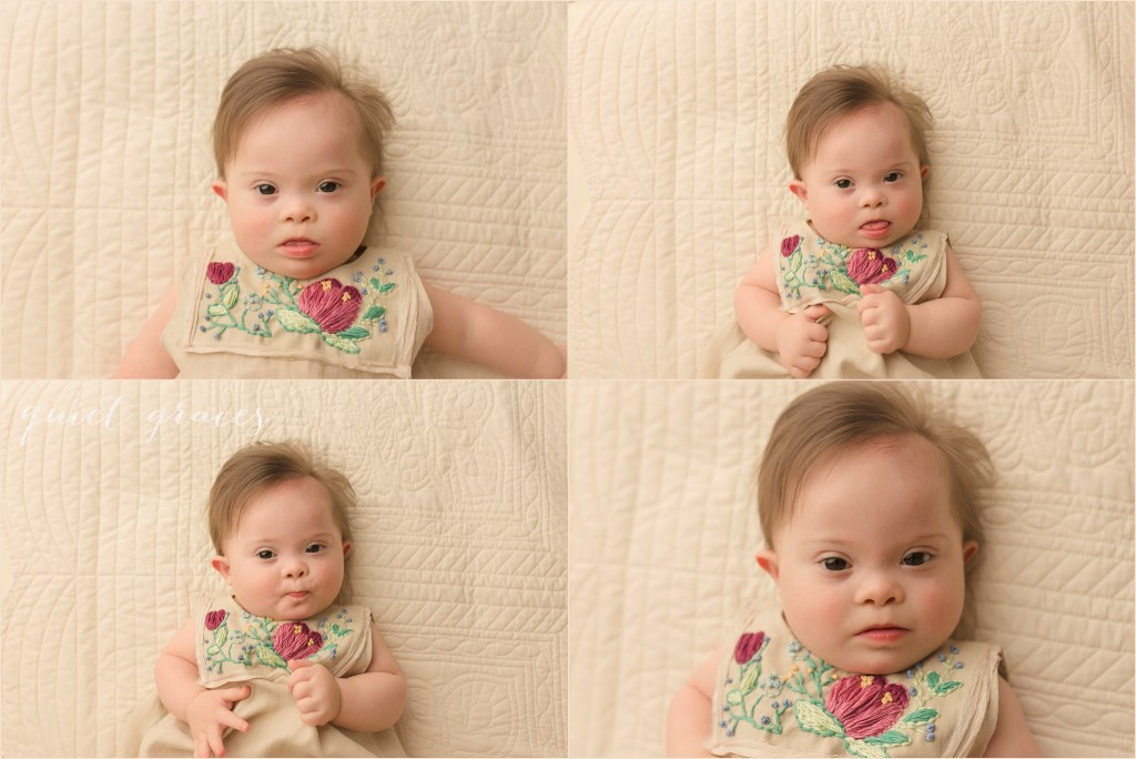 Special Needs Baby Photographer