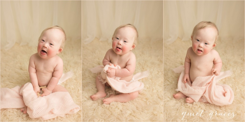 What is it like to have a baby with Down Syndrome